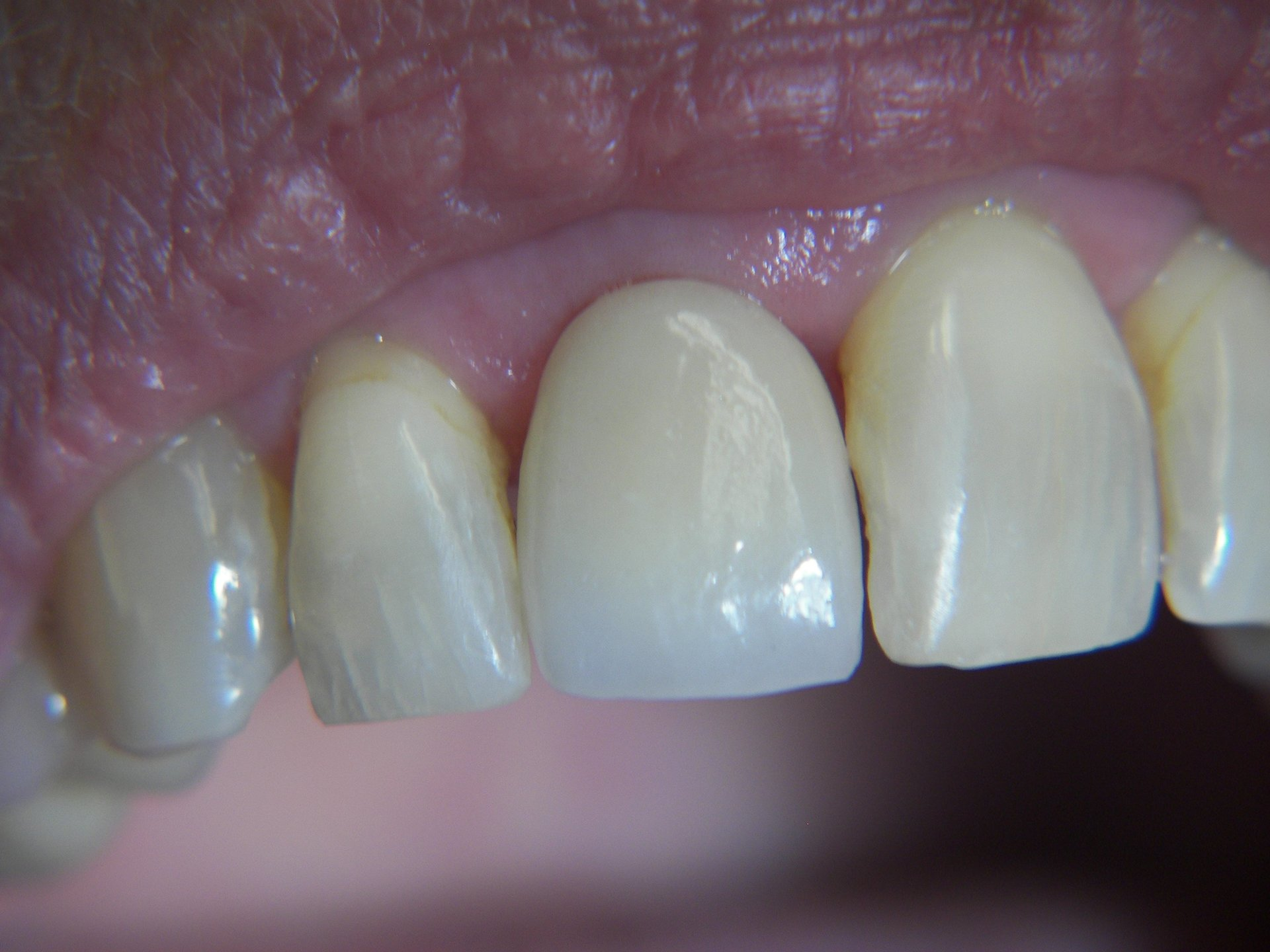 Single Tooth Replacement with Implant