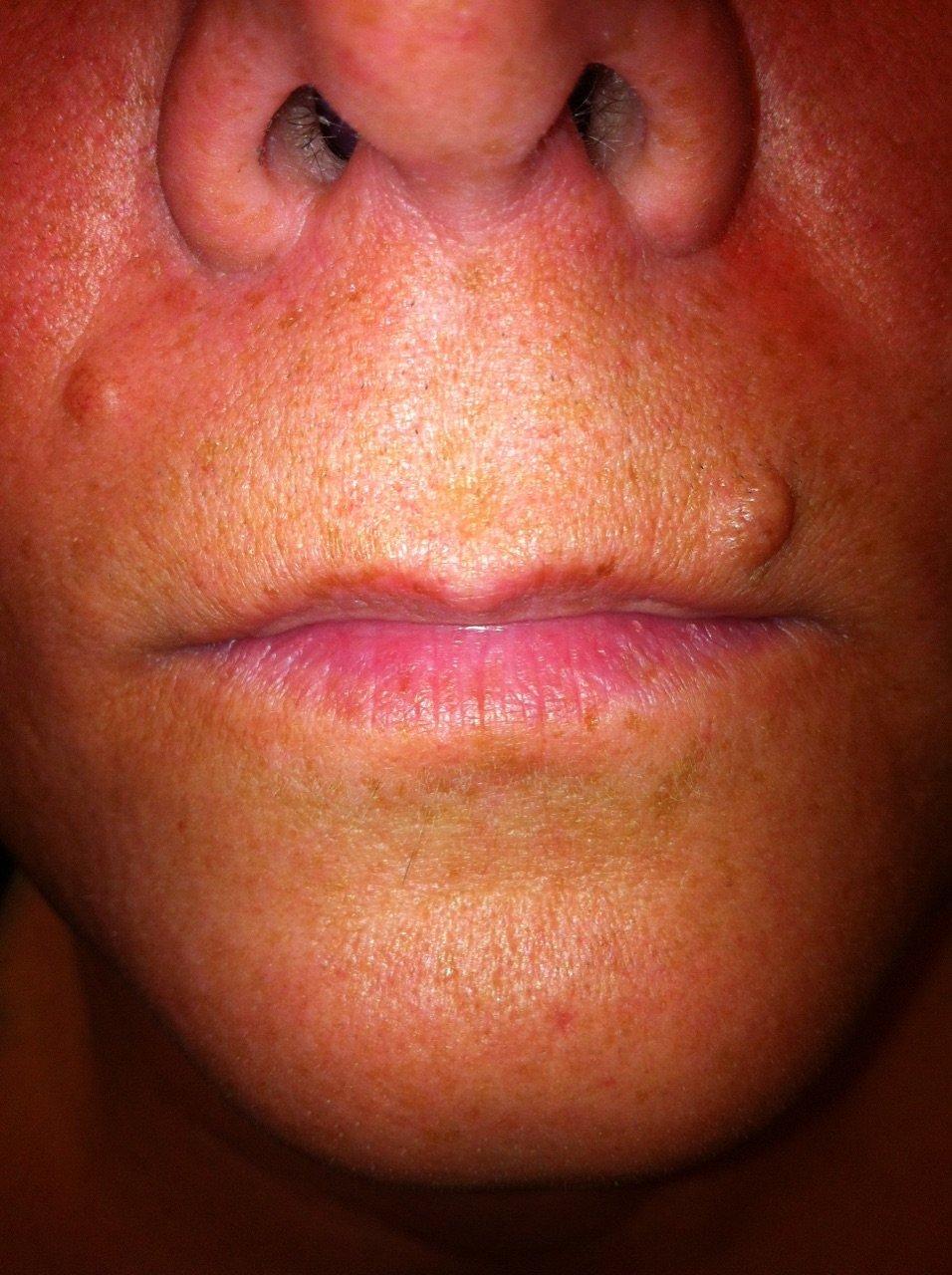 Lips before