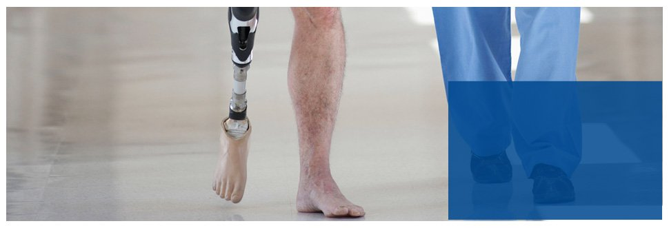 Contact Us | Bloomington, IN | Prosthetic Center Of Indiana | 812-332-5347