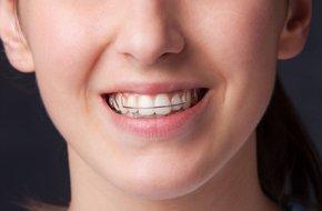 Elmhurst IL - Oral Cancer Screening - Steven E. Erickson, DDS