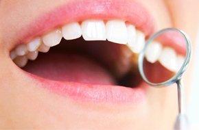 Dental Insurance - Elmhurst IL - Steven E. Erickson, DDS
