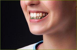 Dentures | Haddonfield, NJ | James B. Soffer D.D.S.. | 856-429-5622