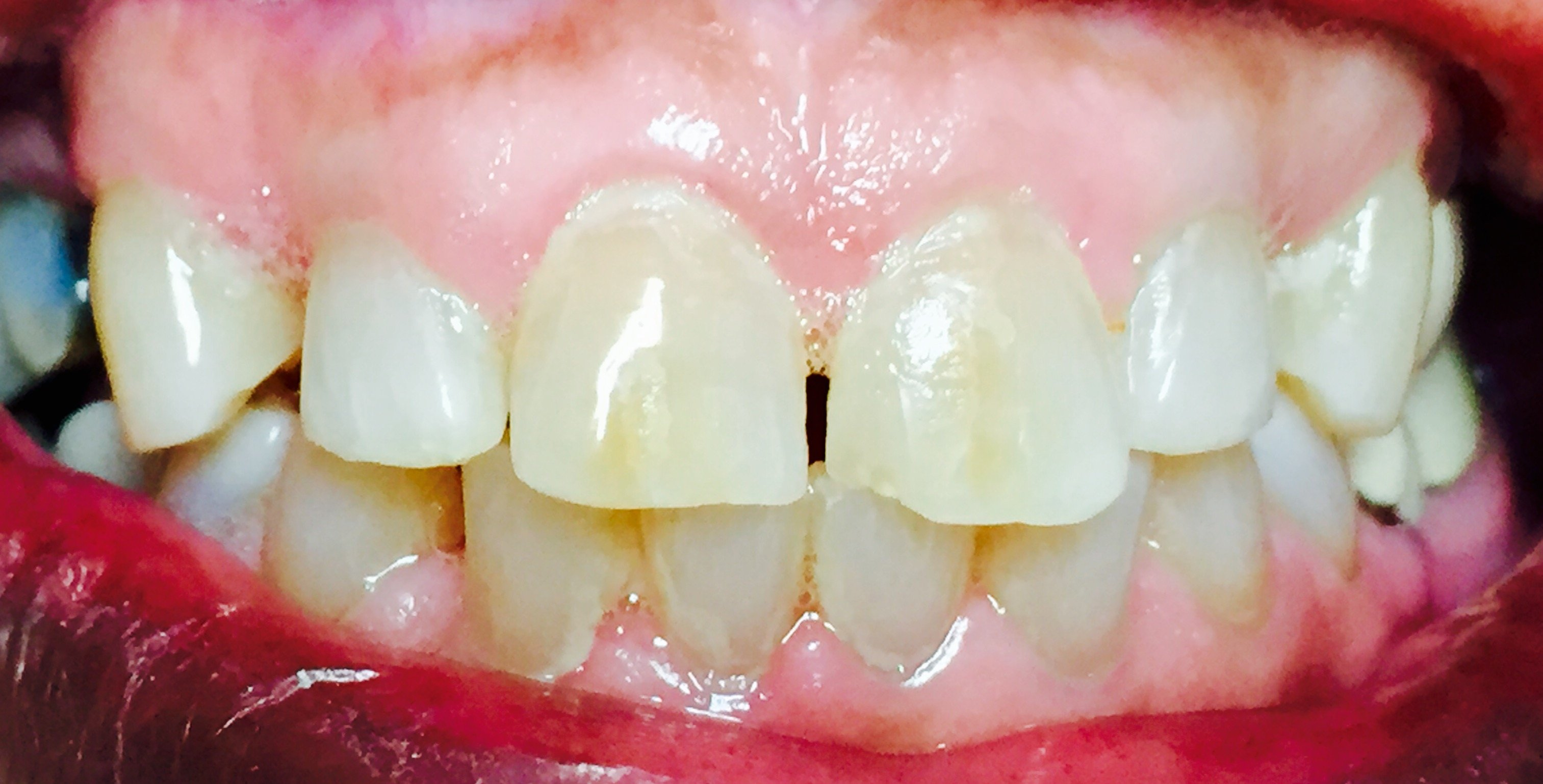 Before fixing teeth