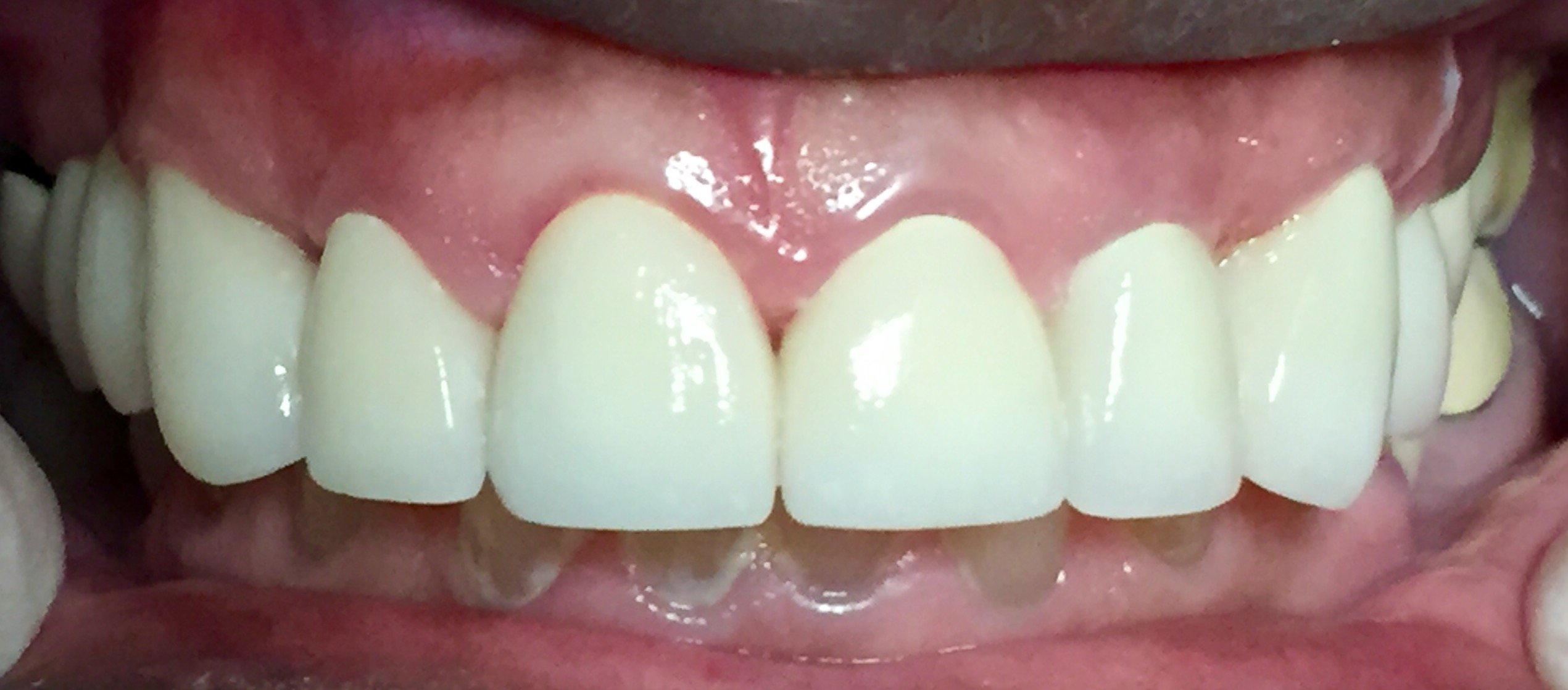 After fixing teeth