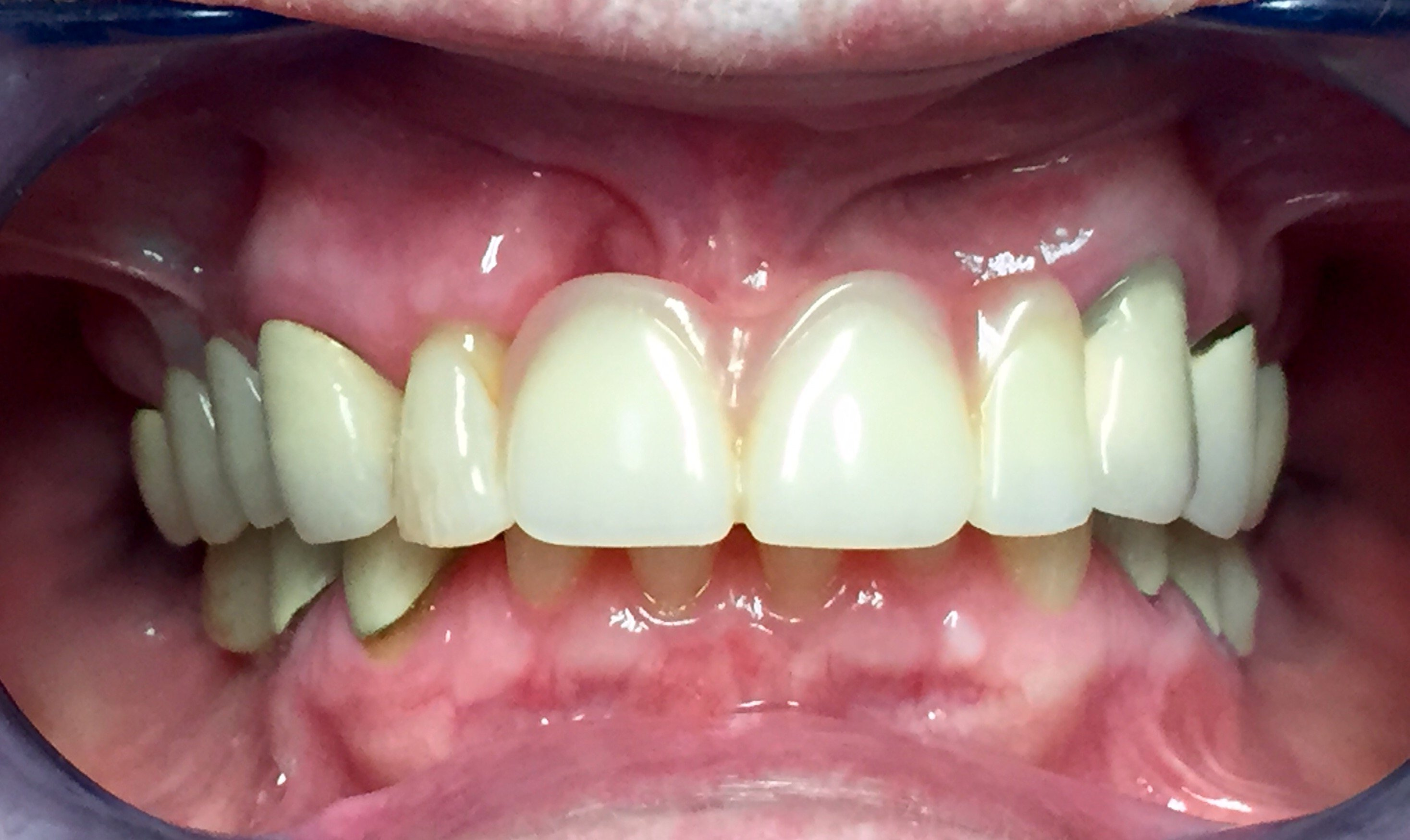 Transitional Removable Partial After