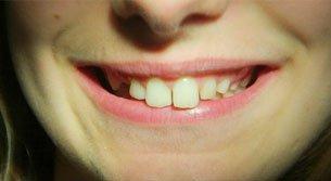 general dentistry | Lake Tahoe, CA | High Sierra Dental Care, Mireya Ortega, Inc | 530-541-7040