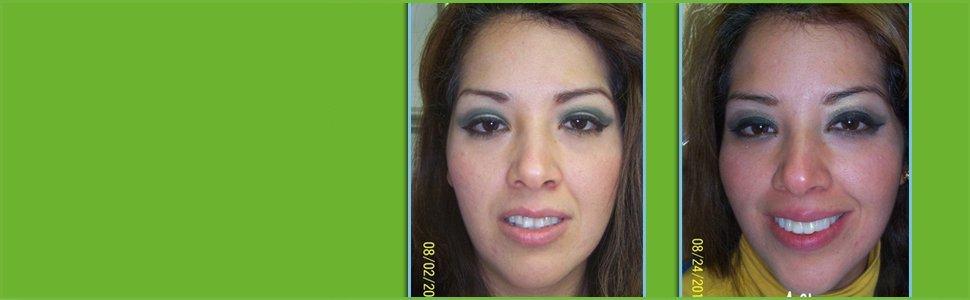 sleep apnea appliances | South Lake Tahoe, CA | High Sierra Dental Care, Mireya Ortega, Inc | 530-541-7040