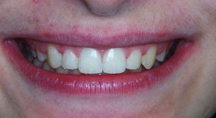 fastbraces | Lake Tahoe, CA | High Sierra Dental Care, Mireya Ortega, Inc | 530-541-7040