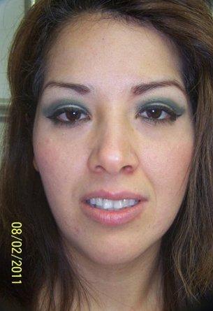 Life Life Veneers Before | Lake Tahoe, CA | High Sierra Dental Care, Mireya Ortega, Inc | 530-541-7040