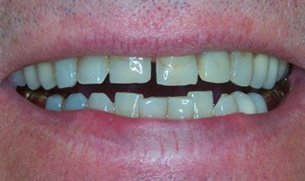 root canals | Lake Tahoe, CA | High Sierra Dental Care, Mireya Ortega, Inc | 530-541-7040