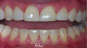 Bonding | Lake Tahoe, CA | High Sierra Dental Care, Mireya Ortega, Inc | 530-541-7040