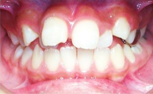 dental surgery | Lake Tahoe, CA | High Sierra Dental Care, Mireya Ortega, Inc | 530-541-7040