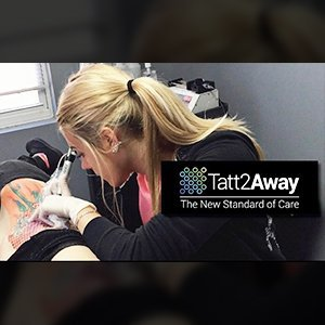 how to become a laser tattoo removal technician in california