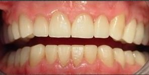 After 28 ceramic crowns