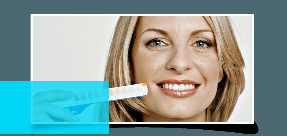 Veneers | Baltimore, MD | Eastern Family Dentistry | 443-478-3828