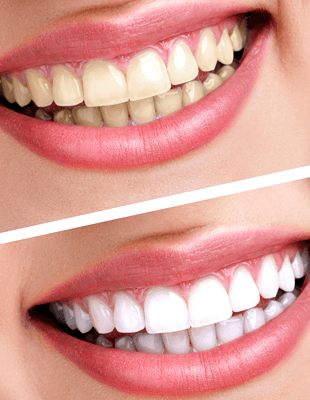 Implants | Baltimore, MD | Eastern Family Dentistry | 443-478-3828