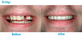 Cosmetic Dentistry - Bridge