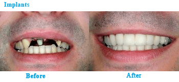 Tooth Implants