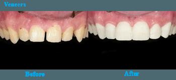 General Dentistry  Veneers
