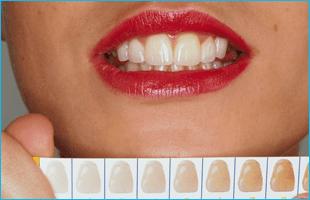 Teeth Bleaching and Whitening