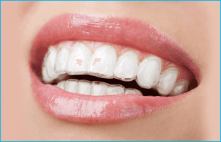 Cosmetic Dentistry and Invisalign