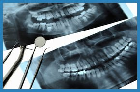 Dental x-rays and tools