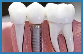 This model shows that teeth have been capped and the stainless pin in the gums