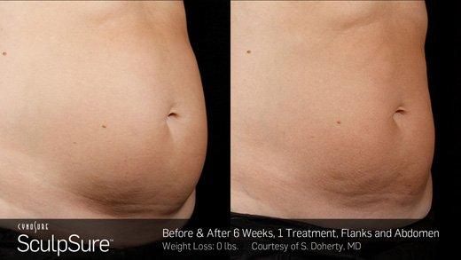 Before and after laser treatment