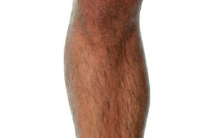 Varicose Veins   Knoxville, TN   Tennessee Surgical Specialists   865-218-7470