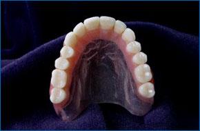 Clear Palate | Wood Dale, IL | Depot Dental Lab Inc. | 630-616-1021