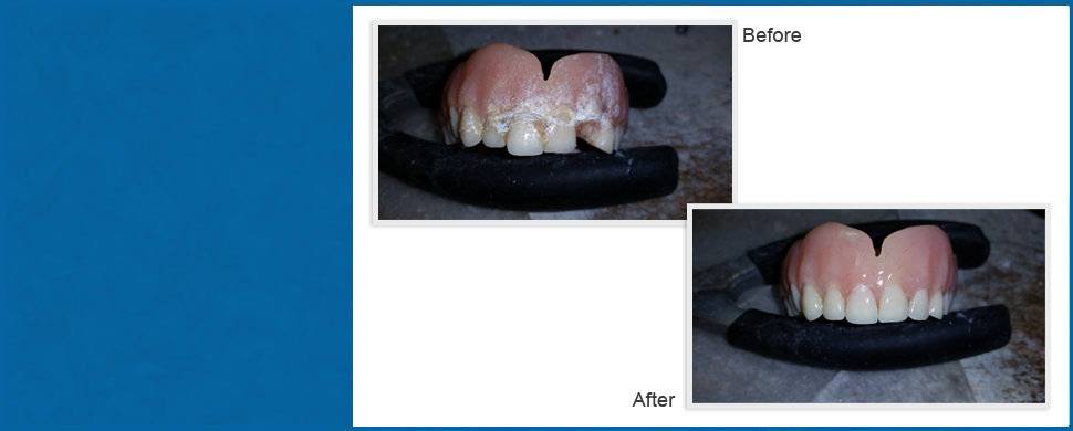 Before and After | Wood Dale, IL | Depot Dental Lab Inc. | 630-616-1021