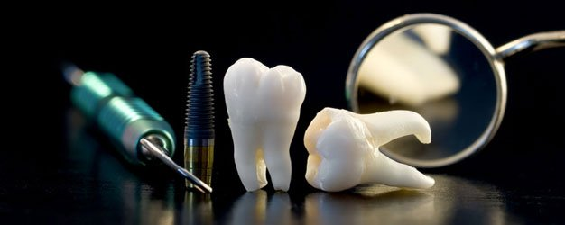Dental implants and tools