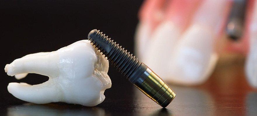 Teeth implant