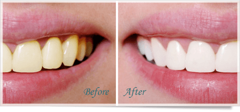 cosmetic dentistry | Media, PA | Middletown Family Dentistry | 610-872-8042