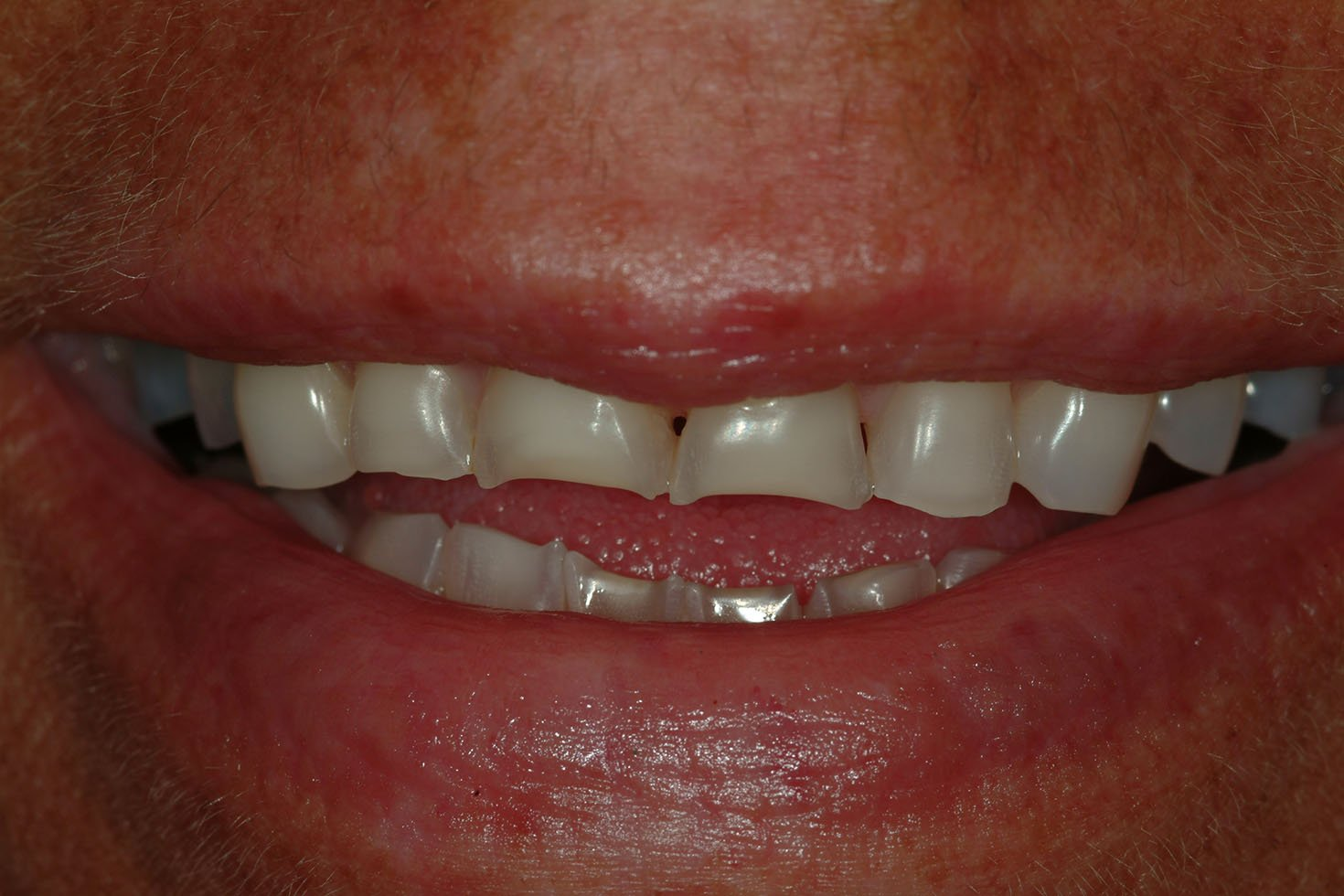 Teeths