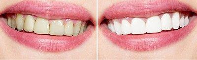 Teeth Whitening | Anderson, IN | Gregg W. Horstmeyer, DDS