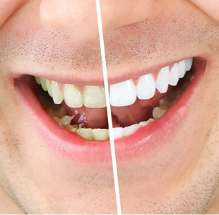 Before and after the whitening of the teeth