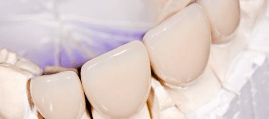 Dental cap and crown