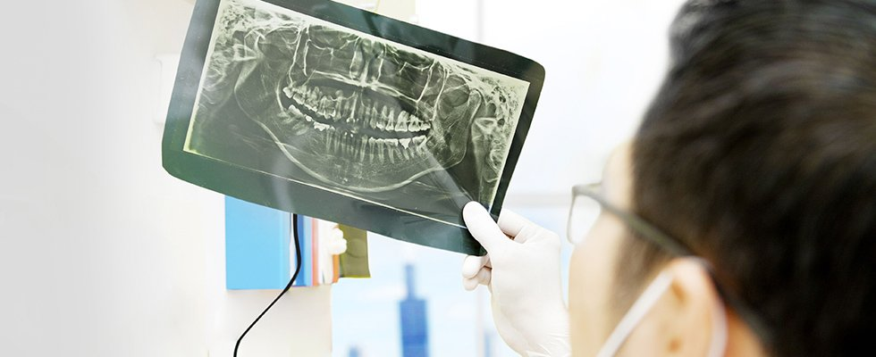 Dental and x-rays