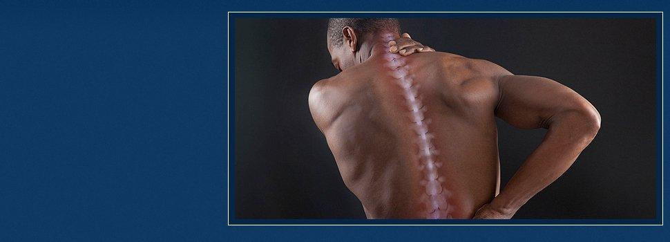 Arm pain | Enterprise, AL | Shiver Chiropractic Clinic | 334-393-9355