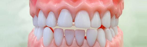 Denture Duplicates