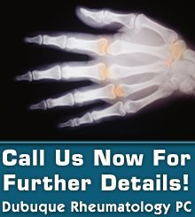 Arthritis Treatment - Dubuque, IA - Dubuque Rheumatology PC - Arthritis Treatment