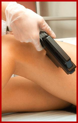 Laser Vein Therapy | Portage, WI | Haareway Laser & Skin Rejuvenation Center | 608-742-9300