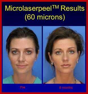 MicroLaser Peel | Portage, WI | Haareway Laser & Skin Rejuvenation Center | 608-742-9300