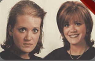 Women's hair loss | Charlotte, NC | Holland's Hair Replacement Systems | 704-535-5400