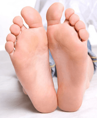 Feet with calluses