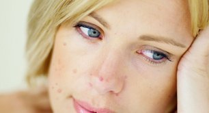 Reduce Your Acne and Rosacea