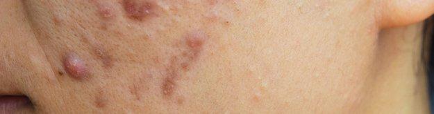 Rosacea Treatment