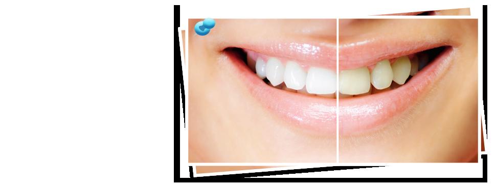 Teeth straightening | Richmond, KY | Mark Stephens DMD | 859-626-0069