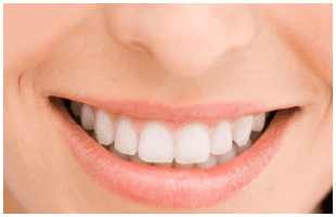 Dental bridges | Richmond, KY | Mark Stephens DMD | 859-626-0069